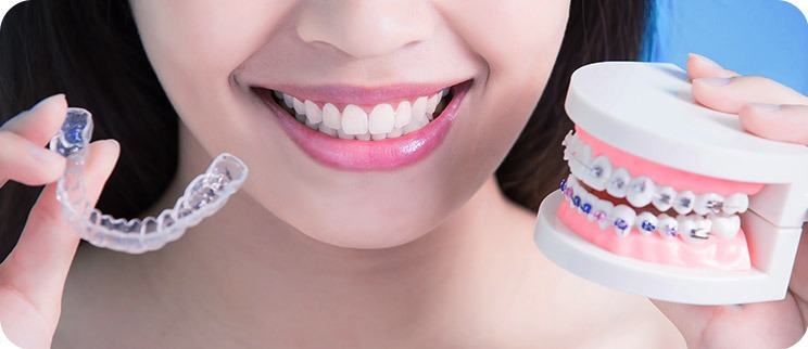 Femme souriante démontrant les broches conventionnelles versus le traitement invisalign
